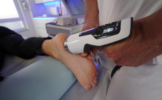 Stoßwellenbehandlung am Fuß